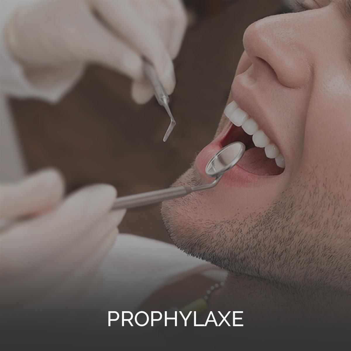 Prophylaxe: Alle Bereiche der modernen Zahnmedizin und insbesondere die Bereiche der ästhetischen Zahnmedizin sind heutzutage unzertrennlich mit dem Begriff der Individualprophylaxe verbunden.