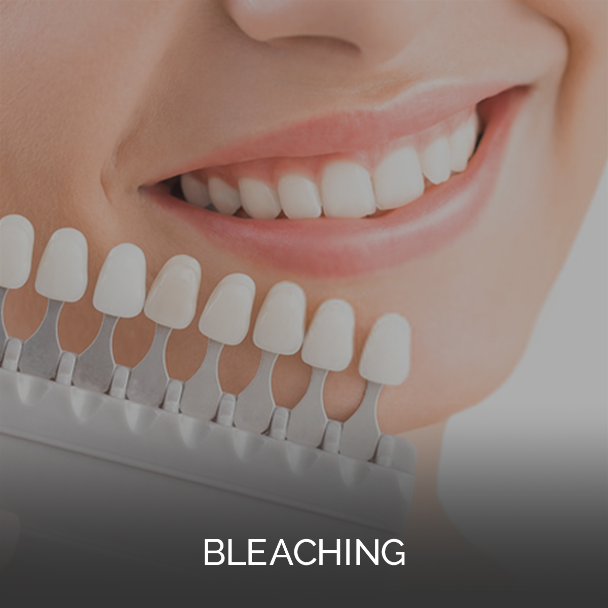 Bleaching: Zahnarztpraxis in Mitte von Berlin bittet Leistungen von Prophylaxe über Zahnersatz bis zu Ästhetischen Zahnbehandlungen ein umfangreiches Leistungspaket und höchste Behandlung